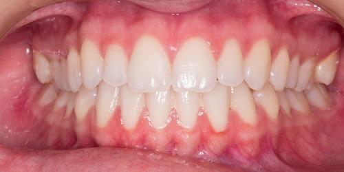 Zahnzusatz-Versicherungen